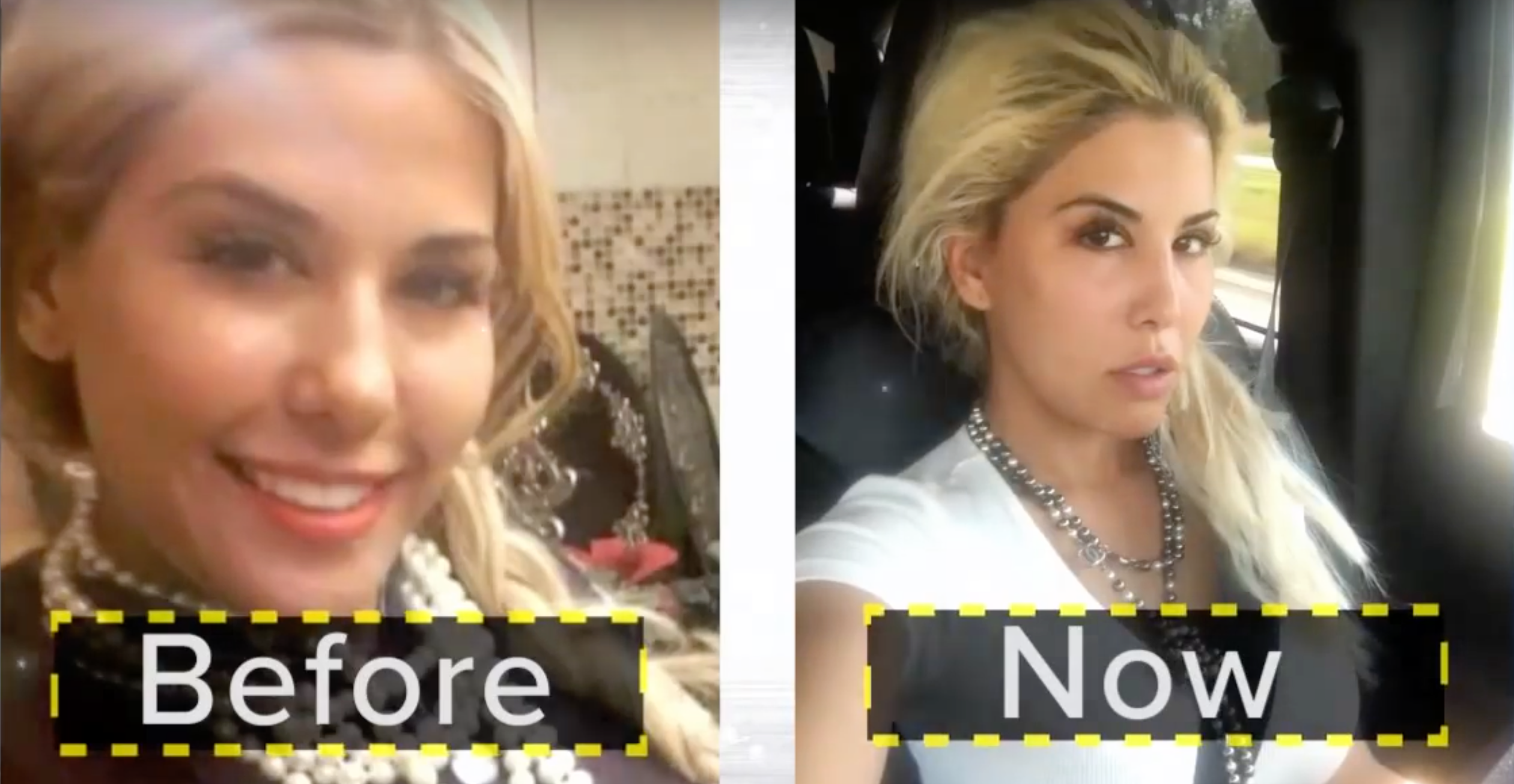 The Ivanka Trump Makeover Is Now a Plastic Surgery Trend recommendations